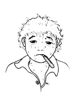 Avoir la varicelle. Source : http://data.abuledu.org/URI/5027d609-avoir-la-varicelle