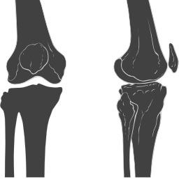 Deux vues du genou. Source : http://data.abuledu.org/URI/53857ba0-deux-vues-du-genou