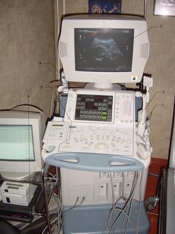 Matériel pour échographie. Source : http://data.abuledu.org/URI/50a93e08-materiel-pour-echographie