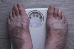 Pèse-personne. Source : http://data.abuledu.org/URI/54b6f2cd-pese-personne