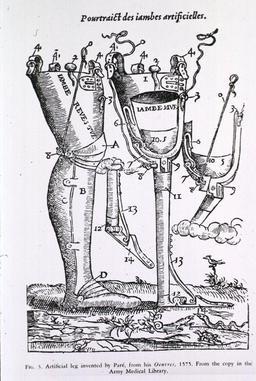 Prothèses de jambes en 1575. Source : http://data.abuledu.org/URI/541775a4-protheses-de-jambes-en-1575
