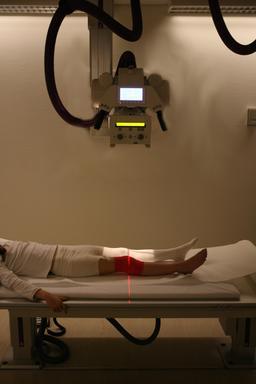 Radiographie du genou. Source : http://data.abuledu.org/URI/53857af8-radiographie-du-genou