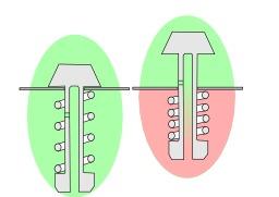 Soupape d'autocuiseur. Source : http://data.abuledu.org/URI/52d71dc8-soupape-d-autocuiseur