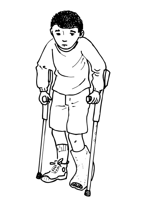 Avoir la jambe cassée