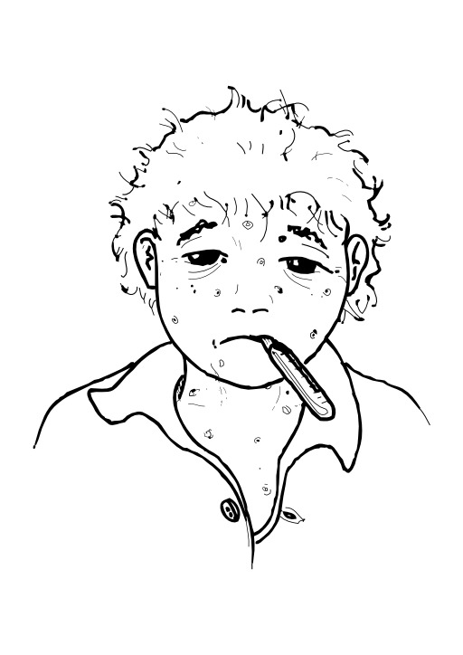 Avoir la varicelle