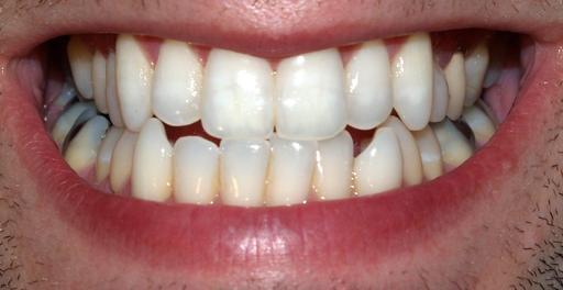 Dentition d'adulte