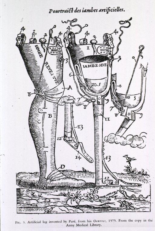 Prothèses de jambes et d'articulations.